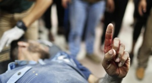 A Palestinian man, who medics said was wounded by Israeli shelling, raises his finger as he is brought to a hospital in Gaza City July 23, 2014. REUTERS/Suhaib Salem