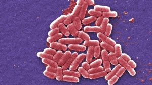 The mcr-1 plasmid-borne colistin resistance gene has been found primarily in Escherichia coli, pictured.     REUTERS/Courtesy CDC
