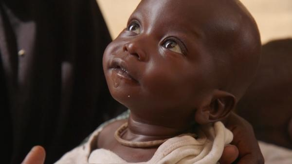 U.N. says 1.4 million children at imminent risk of death in famines