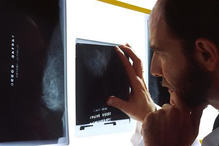 A doctor examines a breast x-ray in an undated file photo. A genetic mutation that raises the risk of breast cancer is found in up to 60 percent of U.S. women, making it the first truly common breast cancer susceptibility gene, researchers reported on Sunday. REUTERS/National Cancer Institute/Handout