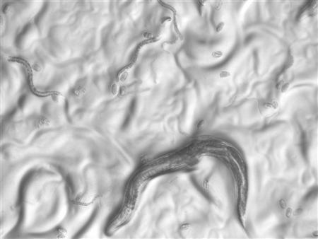 An undated micrograph showing c. elegans worms, released to Reuters on October 15, 2007. Researchers have identified a batch of genes that not only prevent cancer but slow the aging process in worms, and say they are now looking to see if the genes have the same properties in humans. REUTERS/University of California, San Francisco/Dept. of Biochemistry and Biophysics/Handout