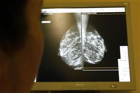 A doctor exams mammograms, a special type of X-ray of the breasts, which is used to detect tumours as part of a regular cancer prevention medical check-up at a clinic in Nice, south eastern France January 4, 2008. Trans-fats, which are being phased out of food because they clog arteries, may raise the risk of getting breast cancer, European researchers reported on Friday. REUTERS/Eric Gaillard