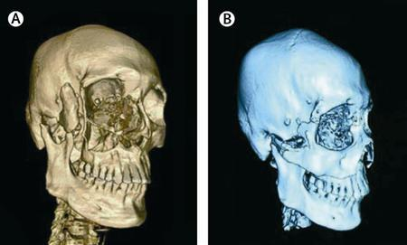 Before and after images illustrate a face transplant performed by Chinese doctors on a 30-year-old mauled by a bear. New faces given to a Chinese man after a bear tore off part of his face and a French-Caribbean man disfigured by a rare tumor show that such transplants can work and are not medical oddities, researchers said on Thursday. REUTERS/The Lancet/Handout