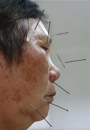 A patient receives traditional needle therapy to cure hemiplegia at a Chinese medicine hospital in Suining, southwest China's Sichuan province May 30, 2007. REUTERS/Stringer