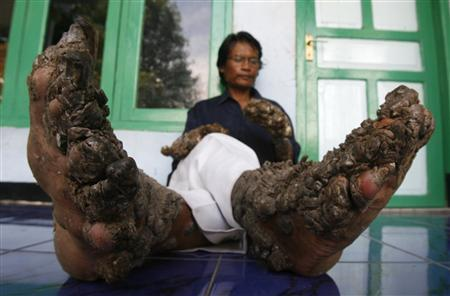 Dede, 36, a man who has gnarled growths sprouting from his hands and feet, sits in front of his house in Tanjung Jaya village on the outskirts of Bandung, the capital of Indonesia's West Java province December 19, 2008. REUTERS/Crack Palinggi