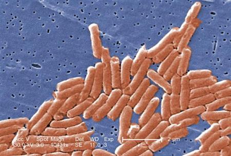 Salmonella bacteria in an undated image courtesy of the CDC. REUTERS/CDC/Handout
