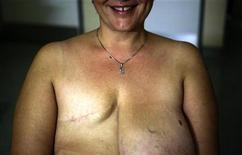 <p>Vasiliki Kostoula, una paziente greca affetta da tumore alla mammella, sorride dopo un esame radiologico in un ospedale di Atene. La donna ha subito la mastectomia del seno destro e si è sottoposta a chemioterapia. La foto è stata scattata il 29 ottobre 2008. REUTERS/Yannis Behrakis</p>