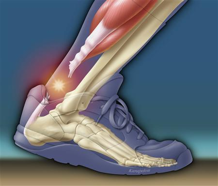 An illustration of a complete tear (rupture) of the Achilles tendon, the strong tendon connecting the calf muscles of the leg to the heel bone, is shown in an athletic shoe. REUTERS/Newscom