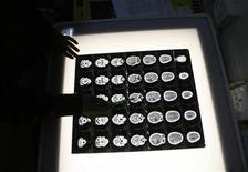 <p>Alcune radiografie del cervello. REUTERS/Rupak De Chowdhuri</p>