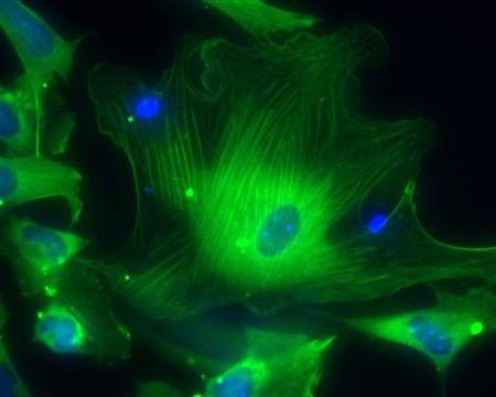A microscopic view shows smooth muscle cells derived from human embryonic stem cells showing the nuclei (blue) and proteins of the cytoskeleton (green) in this handout photo released to Reuters by the California Institute for Regenerative Medicine, March 9, 2009. REUTERS/Alexey Terskikh/Burnham Institute for Medical Research/California Institute for Regenerative Medicine/Handout