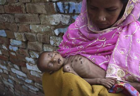 Naushad, 18-months-old and suffering from severe malnutrition, lies on his mother's lap inside their residence in Kalonda village near Sikandrabad district in the northern Indian start of Uttar Pradesh September 6, 2010. REUTERS/Parivartan Sharma