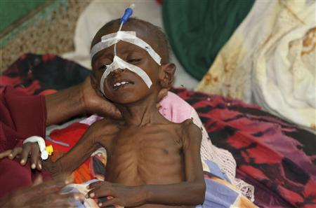 A malnourished child is seen inside a pediatric ward at the Banadir hospital in Somalia's capital Mogadishu, July 22, 2011. REUTERS/Feisal Omar