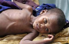 A malnourished child rests inside the pediatric ward at the Banadir hospital in Somalia's capital Mogadishu, July 19, 2011. REUTERS/Feisal Omar