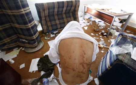 A man who said he had been tortured by Gaddafi's forces shows his injuries in Khoms, some 120km (75 miles) east of Tripoli September 5, 2011. The bodies have been left at Khums hospital to be identified. REUTERS/Anis Mili