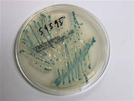 A petri dish with bacterial strains of EHEC bacteria (enterohaemorrhagic Escherichia coli.) is pictured in the microbiological laboratory of the The Austrian Agency for Health and Food Safety (AGES) in Vienna June 9 , 2011. REUTERS/Leonhard Foeger