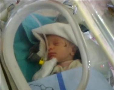The baby girl, rescued from a building that collapsed during an earthquake, rests in an incubator in a hospital in Ercis, near the eastern Turkish city of Van, in this still image taken from video footage October 25, 2011. Rescuers pulled the two-week-old baby girl alive from the arms of her mother buried under a collapsed building on Tuesday.  REUTERS/Reuters TV