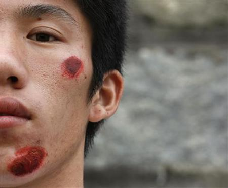 A wounded villager from Wukan is seen after a riot with the police the day earlier in Lufeng, a city of 1.7 million, in the southern Chinese Guangdong province September 23, 2011. Hundreds of villagers in southern China protested on Friday over a government seizure of land, the latest outbreak of trouble in the economic powerhouse of Guangdong province that illustrates growing public anger at the practice of land grabs. REUTERS/Staff