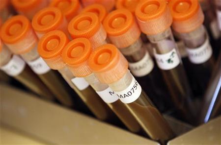 Test tubes filled with samples of bacteria to be tested are seen at the Health Protection Agency in north London March 9, 2011.   REUTERS/Suzanne Plunkett