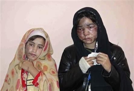 Members of a family receive treatment at a hospital after being attacked with acid at their home by unknown gunmen in Kunduz November 30, 2011.   REUTERS-Whadat