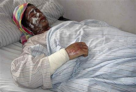 An Afghan woman receives treatment at a hospital after her family was attacked with acid at her home by unknown gunmen in Kunduz November 30, 2011.   REUTERS-Whadat
