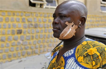 Achiluke Okoro, a victim of the Christmas day bombing at a church near Nigeria's capital Abuja, is seen in Abuja December 27, 2011.  REUTERS-Afolabi Sotunde