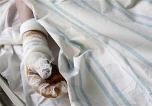 Рука мужчины, попавшего в киевскую больницу с обморожением. Фотография сделана 1 февраля 2012 года. Число жертв рекордных холодов на Украине за минувшие сутки выросло на 20 человек до 63 погибших, сообщило Министерство по чрезвычайным ситуациям. REUTERS/Gleb Garanich
