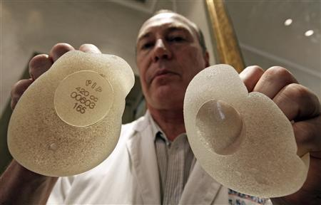 Plastic surgeon Denis Boucq poses with silicone gel breast implants manufactured by French company Poly Implant Prothese (PIP) in a clinic in Nice December 26, 2011. REUTERS/Eric Gaillard