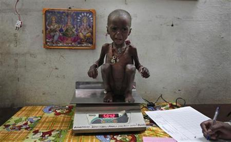 Severely malnourished two-year-old girl Rajni is weighed by health workers at the Nutritional Rehabilitation Centre of Shivpuri district, Madhya Pradesh February 1, 2012. REUTERS/Adnan Abidi/Files