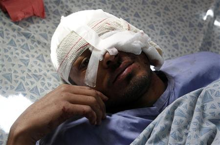 An Afghan man receives treatment at a hospital in Jalalabad province February 27, 2012. REUTERS/Parwiz