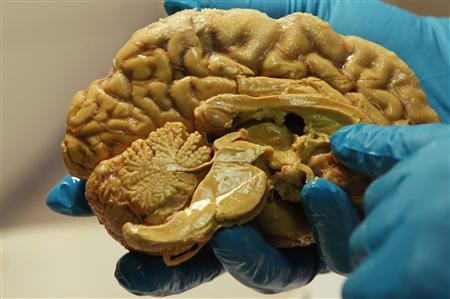 Hungarian scientist Tamas Freund holds a human brain at the Institute of Experimental Medicine of Hungarian Academy of Science in Budapest in this March 16, 2011 file photo. Data from Thomson Reuters Pharma shows returns for pharmaceutical companies in the antidepressant market are collapsing - despite widespread use of pills like Prozac - as patents expire and new drugs fail to make it to market. To match Insight HEALTH-DEPRESSION/DRUGS REUTERS/Laszlo Balogh/Files