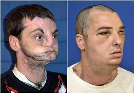 Richard Norris is seen before (L) and after (R) his face transplant surgery in this combination of undated handout photos released by the University of Maryland Medical Center. REUTERS-University of Maryland Medical Center-Handout