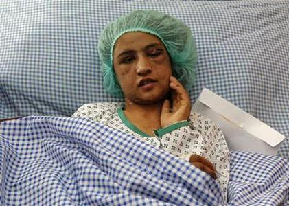 An Afghan girl who was tortured for months after refusing prostitution lies on a hospital bed in Kabul December 31, 2011. REUTERS/Omar Sobhani