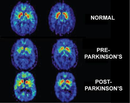 Brain imaging showing the stages of Parkinson's disease. REUTERS/NIH