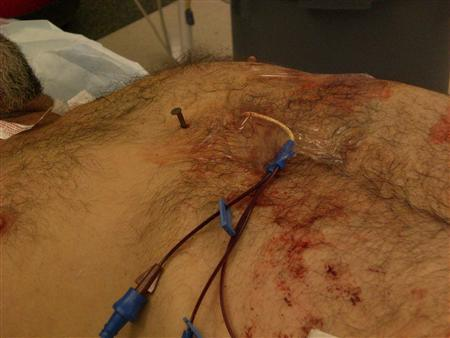 A nail is shown in the chest of of Dennis Hennis before undergoing life saving cardiac surgery at Cooper University Hospital in Camden, New Jersey April 6, 2012. Hennis, 52, who was revived from cardiac arrest before being airlifted for surgery, shot a 4-inch nail into his heart while trying to clear his jammed nail gun. REUTERS/Cooper University Hospital/Handout