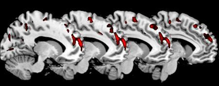 A brain scan shows areas of reduced gray matter volume in the medial prefrontal cortex of the brain of the psychopathic group of antisocial men compared to the non-psychopathic group of antisocial men. REUTERS/Institute of Psychiatry King's College London/Handout
