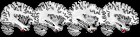 A brain scan shows areas of reduced gray matter volume in the temporal pole of the brain of the psychopathic group of antisocial men compared to the non-psychopathic group of antisocial men. REUTERS/Institute of Psychiatry King's College London/Handout