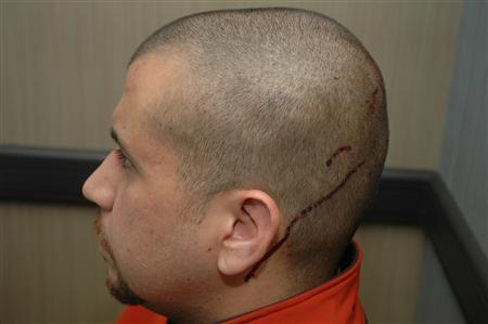 George Zimmerman is shown with blood on his head in this handout photo provided by the State Attorney's Office on May 17, 2012. REUTERS/State Attorney's Office/Handout
