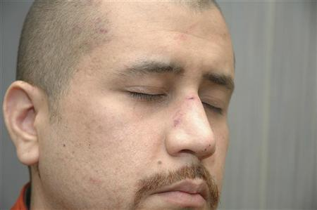 Undated handout photo shows George Zimmerman shortly after he killed Trayvon Martin, in Sanford, Florida. Zimmerman is charged in the shooting death of the 17-year-old during a confrontation in a gated community on February 26, 2012. REUTERS/George Zimmerman Legal Case/Handout