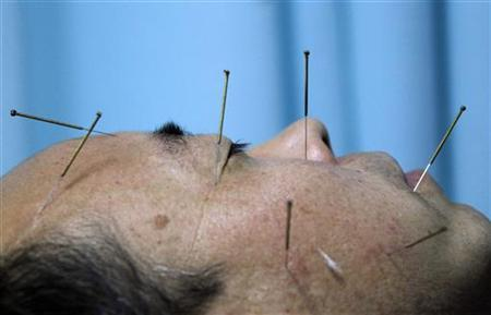 A patient lies on a bed as he undergoes acupuncture treatment at Beijing's Capital Medical University Traditional Chinese Medicine Hospital April 6, 2010. REUTERS/David Gray