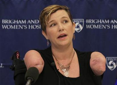 Katy Hayes of Kingwood, Texas speaks during a news conference at Brigham and Women's Hospital in Boston September 12, 2012 in this handout supplied by Brigham and Women's Hospital. REUTERS/Brigham and Women's Hospital/Handout