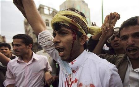 A protester shouts slogans after sustaining injuries from a confrontation with riot police who fired tear gas at them outside the U.S. embassy in Sanaa September 13, 2012. REUTERS/Mohamed al-Sayaghi