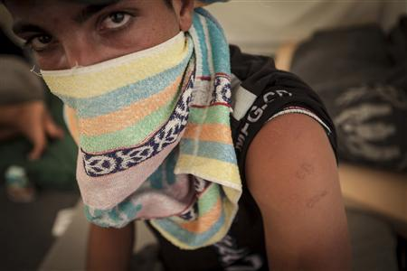 Syrian refugee Khalid, 15, is seen at the Zaatari refugee camp in Jordan, in this handout photo taken on September 16, 2012. British-based charity Save the Children on September 25, 2012 published first-person accounts from interviews with refugee children who said they had witnessed massacres and seen family members killed during the 18-month-old conflict. Khalid said he was hung by his arms from the ceiling of his own school building in Syria and beaten senseless. REUTERS/Jonathan Hyams/Save the Children/Handout