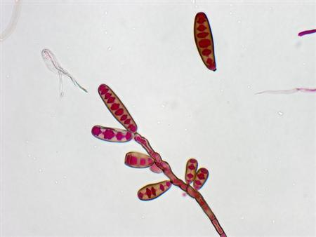 Exserohilum rostratum, a type of fungi, is seen in this handout image from the Centres for Disease Control, October 13, 2012. CDC continues to confirm the presence of the fungus Exserohilum in clinical specimens from people with meningitis. REUTERS/Centres for Disease Control/Handout