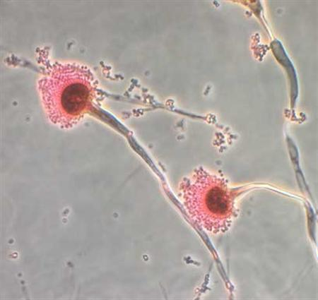 Aspergillus, a type of fungi, is seen in this handout image from the Centres for Disease Control, October 13, 2012. CDC continues to confirm the presence of the fungus Exserohilum in clinical specimens from people with meningitis. REUTERS/Centres for Disease Control/Handout