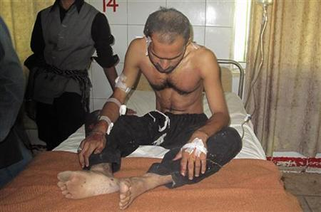 A Pakistani Shi'ite Muslim, who was injured by a roadside bomb during a Shi'ite procession, rests at a hospital in Dera Ismail Khan in Pakistan's northwest November 24, 2012. REUTERS/Mustansar Baloch