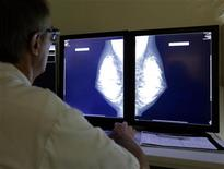 No sólo los hombres son más propensos que las mujeres a que se les diagnostique un cáncer, sino que los varones que lo sufren tienen más posibilidades de morir de la enfermedad, según un estudio de EEUU. En un análisis de casos en los últimos diez años de todas las clases de cáncer, salvo las específicas por sexos, como el de próstata y el de ovario, los hombres tenían más probabilidades de morir que las mujeres, señalaron los expertos, que publicaron sus hallazgos en The Journal of Urology. En la imagen, un radiólogo examina una mamografía en un centro médico en Niza el 5 de noviembre de 2012. REUTERS/Eric Gaillard