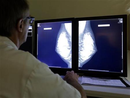 A radiologist examines breast X-rays after a regular cancer prevention medical check-up at a radiology center in Nice, November 5, 2012. REUTERS/Eric Gaillard