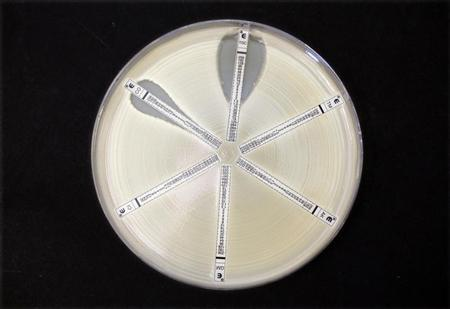 A plate which was coated with an antibiotic-resistant bacteria called Klebsiella with a mutation called NDM 1 and then exposed to various antibiotics is seen at the Health Protection Agency in north London March 9, 2011. REUTERS/Suzanne Plunkett
