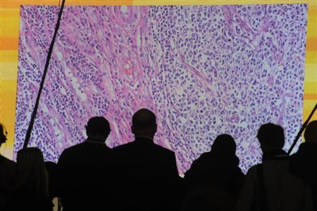 Cancer cells are seen on a large screen connected to a microscope at the CeBit computer fair in Hanover, March, 6, 2012. REUTERS/Fabian Bimmer