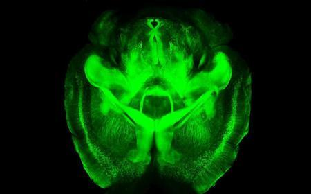 A CLARITY scan of an entire intact mouse brain is seen in this undated handout image courtesy of Kwanghun Chung and Karl Deisseroth, of Howard Hughes Medical Institute at Stanford University. REUTERS/Kwanghun Chung and Karl Deisseroth, Howard Hughes Medical Institute/Stanford University/Handout